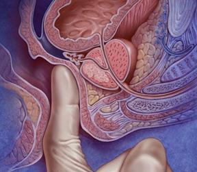 Пальцевое ректальное исследование предстательной железы