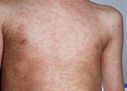 Сыпь по всему телу - симптом сифилиса на второй стадии заболевания
