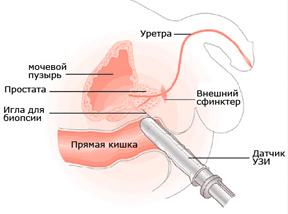 Трансректальное ультразвуковое исследование предстательной железы (ТРУЗИ)